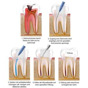 Wurzelbehandlung, in der Fachsprache Endodontie genannt, der Praxisklinik Aachen
