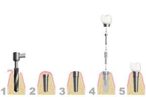 Zahnimplantate der Praxisklinik Aachen