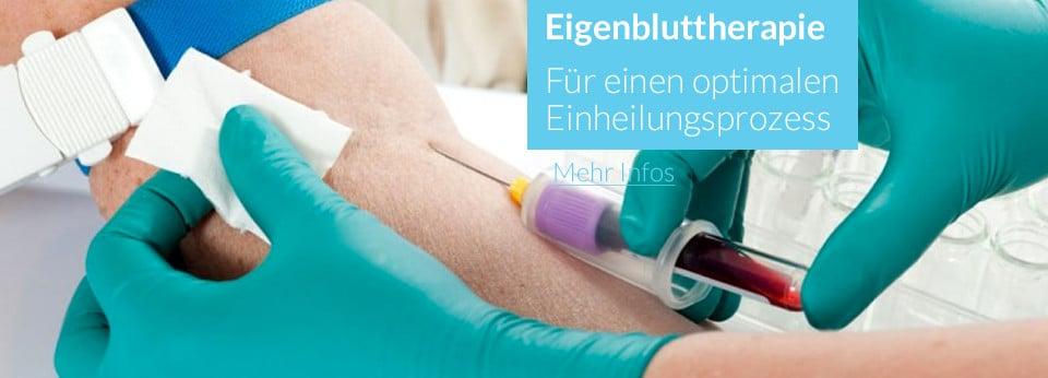 Eigenbluttherapie Zahnarzt Aachen