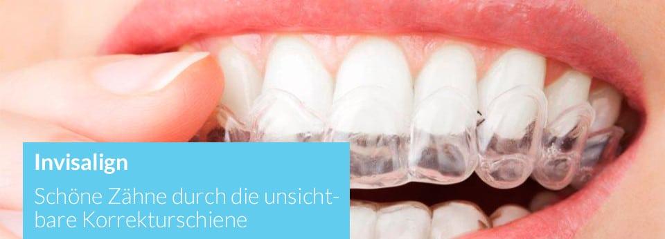 Invisalign - Korrektur von Zahnfehlstellungen